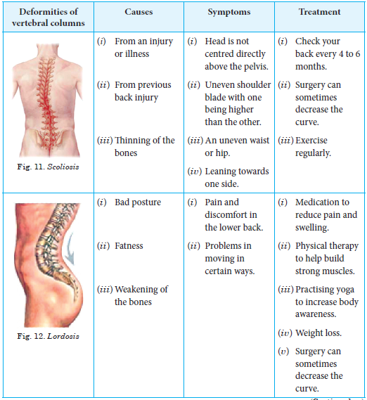 Deformities of Vertebral Column or Spine